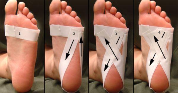 استفاده نوارهای ورزشی در زیر کف پا